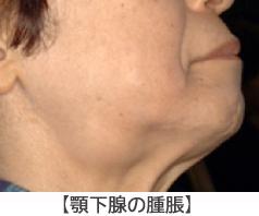 九州大学病院 顔面口腔外科